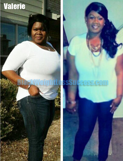He... Before and after Gastric Sleeve surgery photo montage by Ramon
