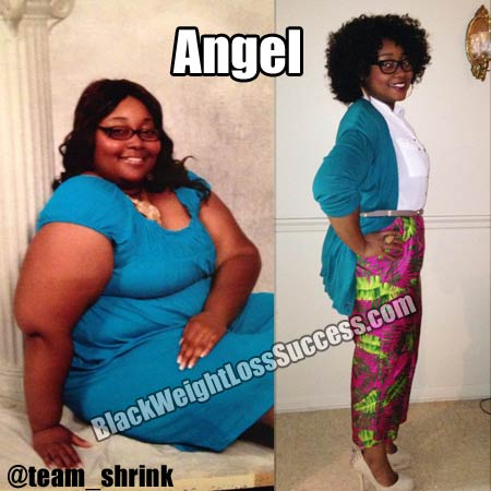 Angel lost 114 pounds with weight loss surgery | Black ...