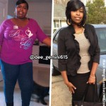 Diandra lost 173 pounds with surgery